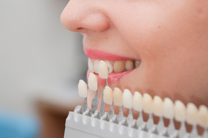 How To Care For Porcelain Veneers