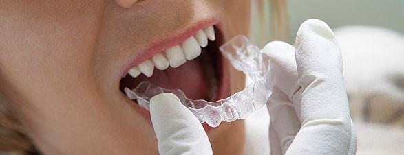 Dental braces Solihull