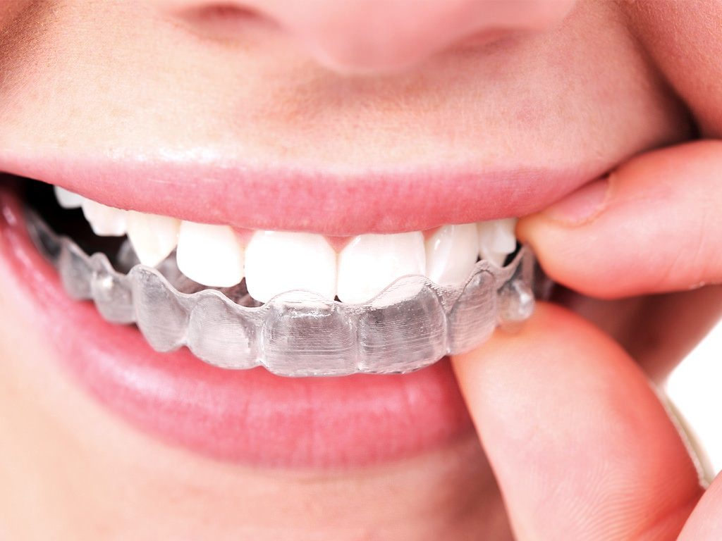 5 Tips To The Best Invisalign Results